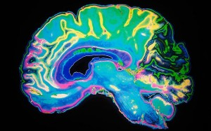 mozgani-budnost-zeleni-caj