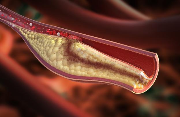 slabi-holesterol