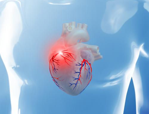 Varovalna prehrana pri boleznih srca in ožilja